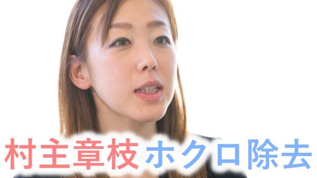 【村主章枝】顔は整形して変わった?歯並びやホクロの除去?画像まとめ