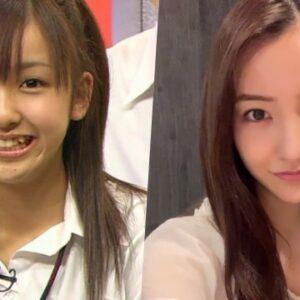 板野友美は顔が整形で変わった?デビューから現在までを時系列で比較